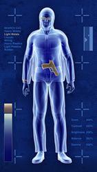 Une image fournie par un scanner corporel