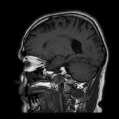 Cerveau IRM