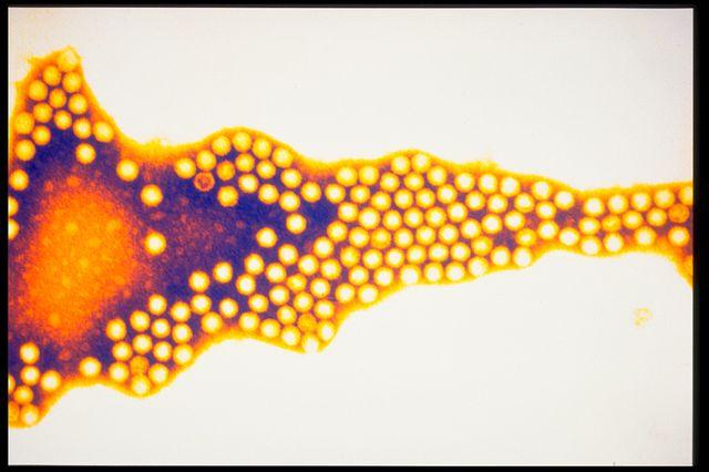 Polio virus (Picornavirus)