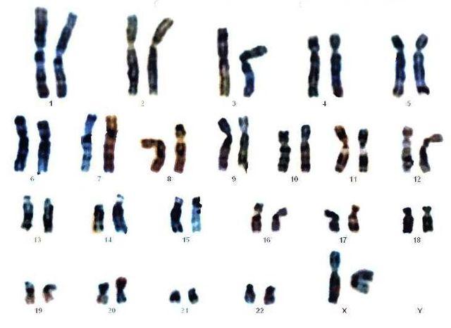 Caryotype (Mapa genético o cariograma)