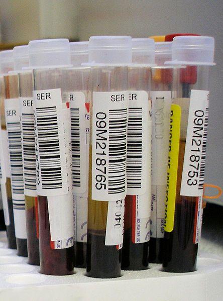 échantillon de sang