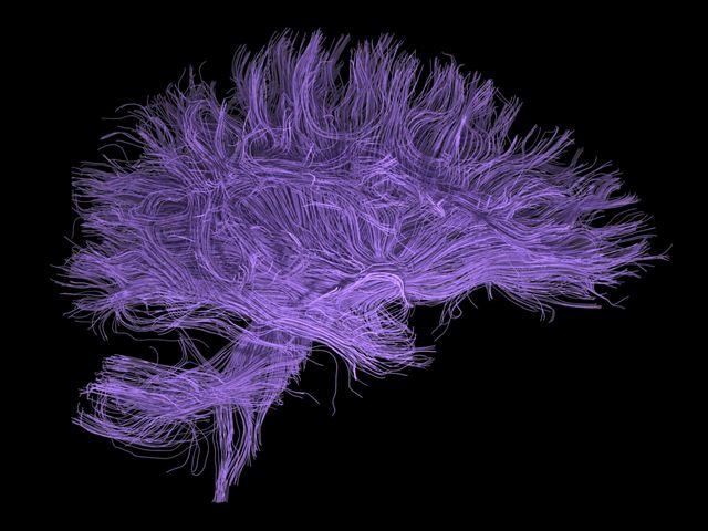 cerveau vue d'artiste