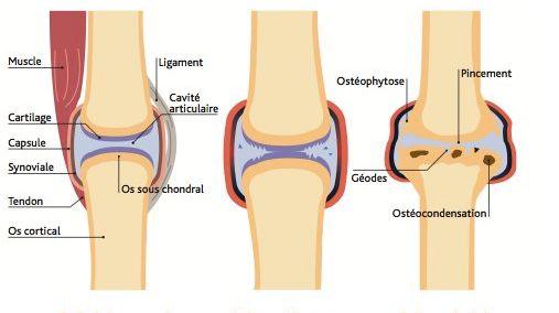 L'arthrose