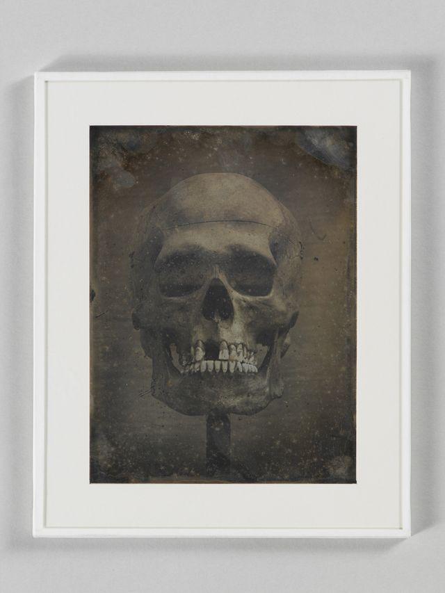 Crâne de Tei-Eito, grand Ariki de la tribu des Taïs, île Nouka-Hiva, Archipel des Marquises, Polynésie - Photographié à Paris
