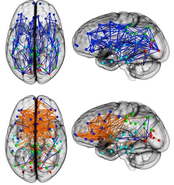 Connexions internes du cerveau de 428 hommes (en haut) et 521 femmes (en bas)
