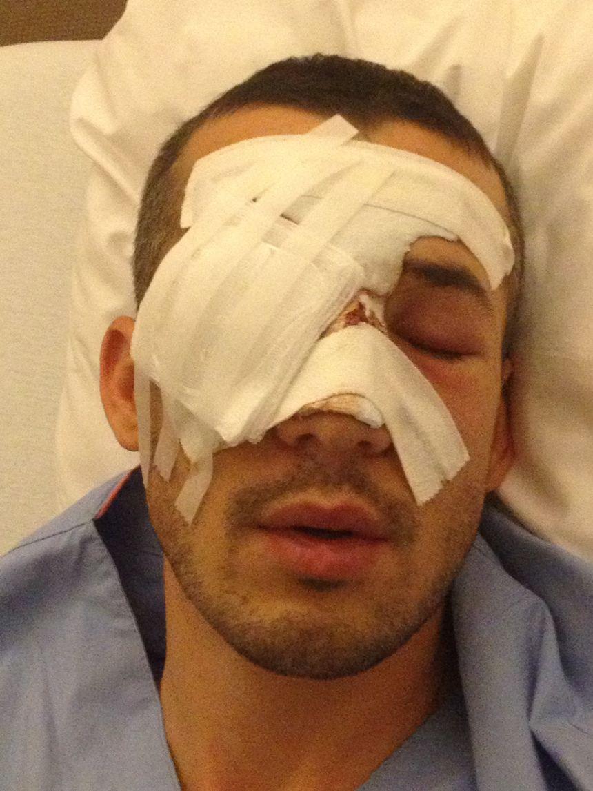 Quentin, pompier blessé lors d'une manifestation en Isère