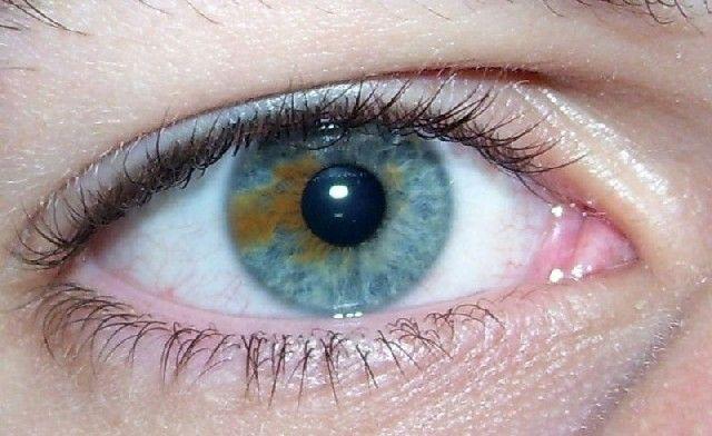 Epidémie de troubles de la vision du 03 février 2014 - France Inter