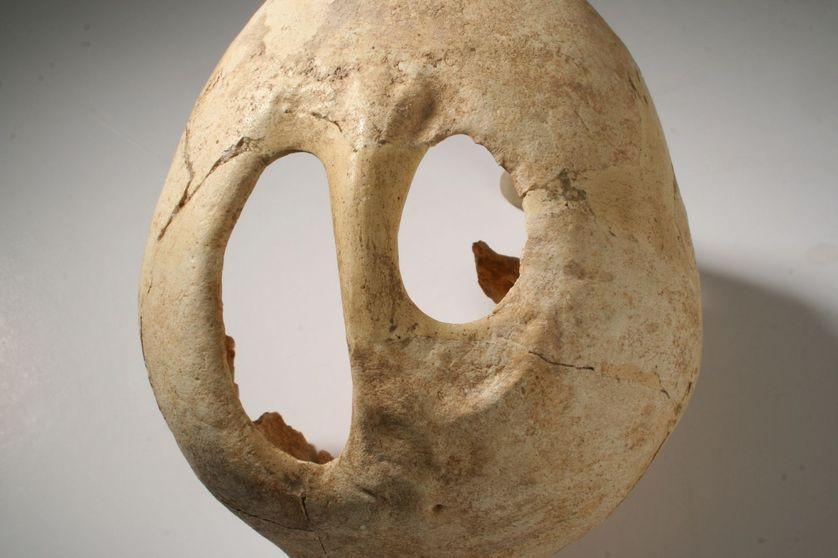 La médecine préhistorique