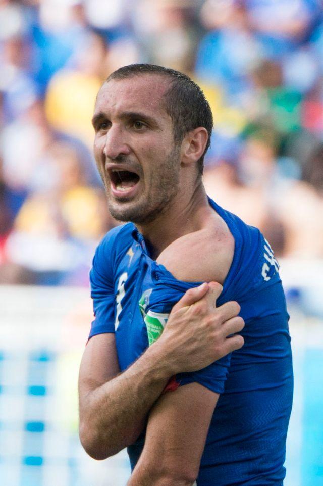 L'Italien Giorgio Chiellini montre son épaule après la morsure de Luis Suarez, de l'équipe d'Uruguay.