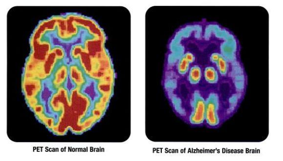 scanner cerveau normal/maladie d'Alzheimer