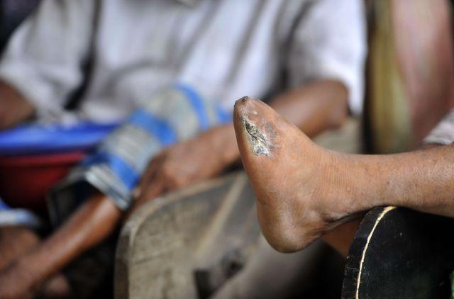 La lèpre, ici une léproserie au Bangladesh