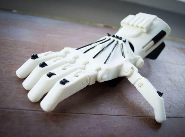 Prothèse E-Nable