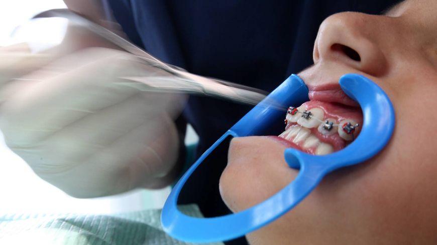 De plus en plus d'ados américains fabriquent eux-mêmes leur appareil dentaire