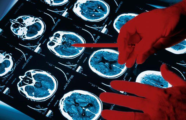 Neurologue examinant des scans de cerveau
