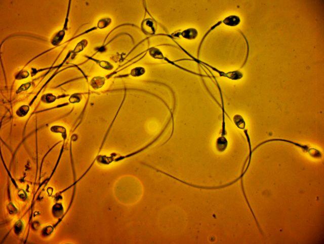 Spermatozoïdes-traumatismes-déséquilibres alimentaires