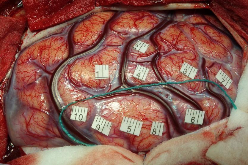 Opération sur une tumeur du cerveau par les équipes du CHRU de TOURS
