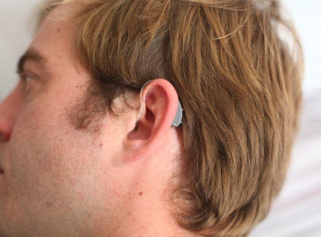 Des prothèses auditives performantes mais mal remboursées