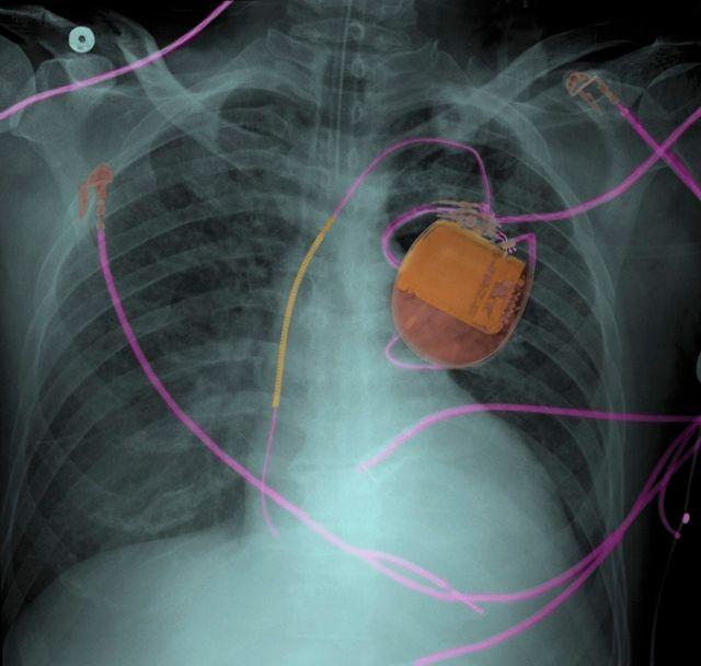 Radio d'une poitrine humaine avec un pacemaker