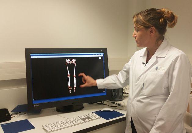 Analyse scanner des fémurs du squelette inconnu