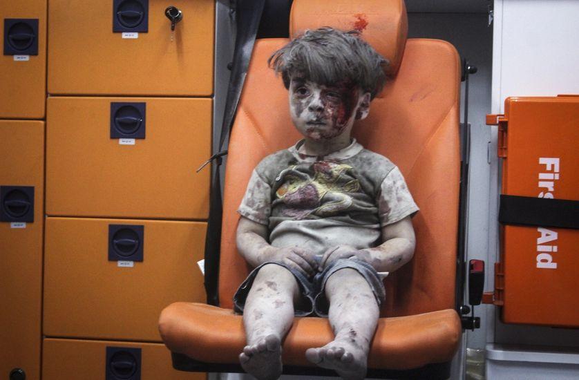 Enfant d'Alep Omran Daqneesh photo du 17 août 2016.