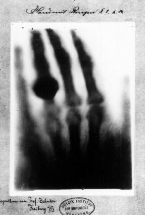 Le premier cliché anatomique radiographique par Wilhelm Röntgen.