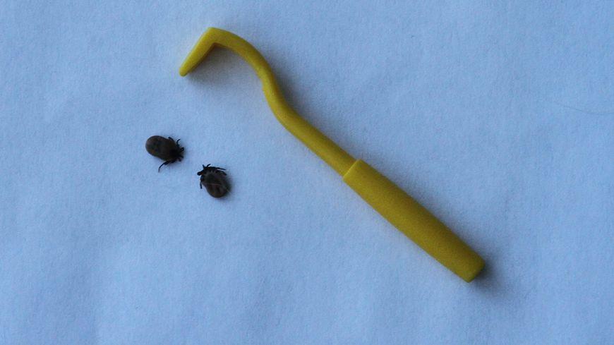 La maladie de Lyme peut être grave si elle n'est pas dépistée