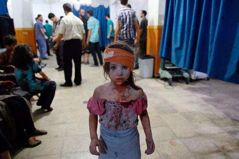 Jeune enfant recueillie dans un hôpital de Douma en août 2015, à l'est de Damas, après des attaques aériennes gouvernementales.