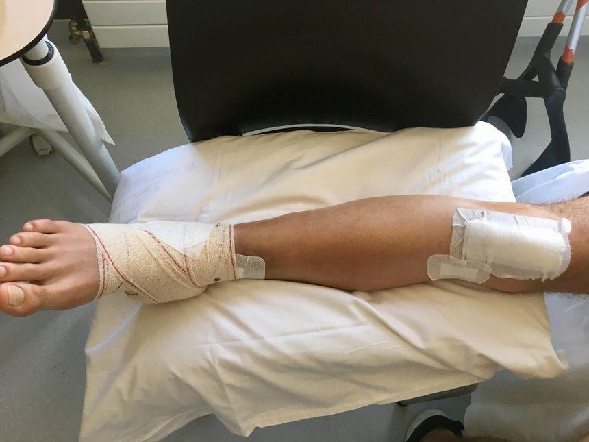 Boris a dû être opéré d'une double fracture tibia péroné