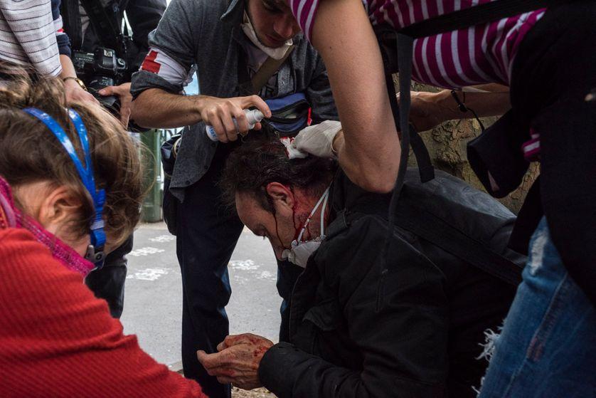 """Un manifestant contre la Loi Travail reçoit des soins de la """"team medic"""", après avoir été blessé lors de la manifestation du 14 juin 2016 entre Place d'Italie et Invalides."""