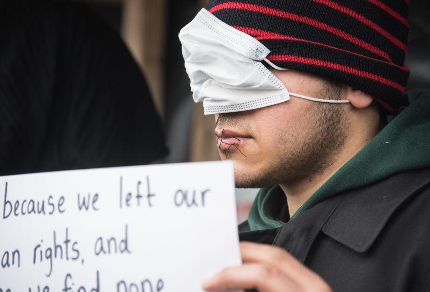 Le 3 mars 2016, des iraniens se cousent la bouche en signe de protestation sur la jungle de Calais.
