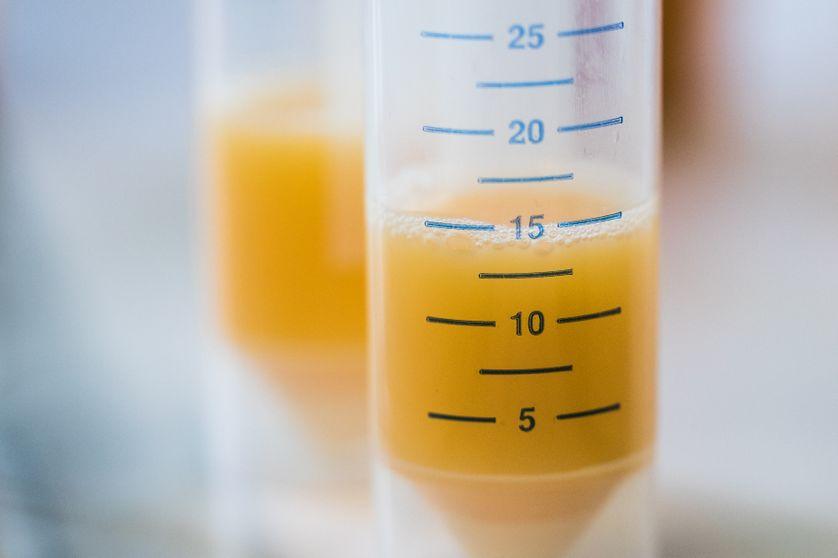 Tube à essais contenant de l'œuf au laboratoire chimique et vétérinaire de l'Office d'investigation de Krefeld, Allemagne, 7 août 2017.