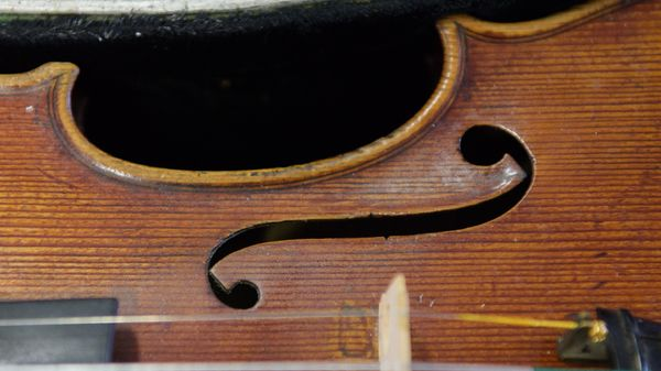 Près de trente ans après un accident, une violoniste handicapée rejoue par la pensée