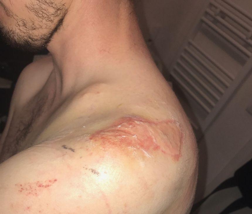 Le beau-frère de Thomas, fan du Racing, affirme aussi avoir été agressé à Lyon le 5 août 2017