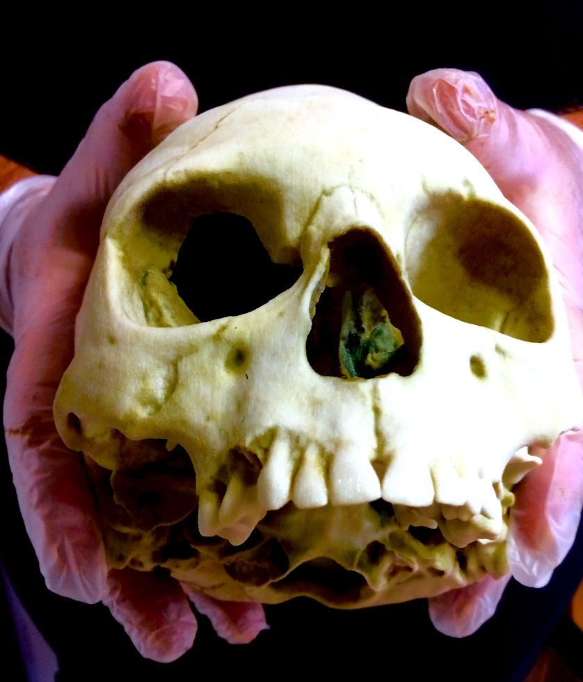 un crâne vieux de 1650 ans, témoin des invasions orientales ?