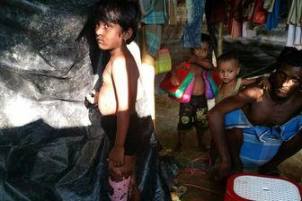 Une fillette de 6 ans gravement brûlée aux jambes, dans le camp de réfugiés de Kutupalong.  Des militaires Birmans l'ont jetée dans un feu, avec d'autres enfants