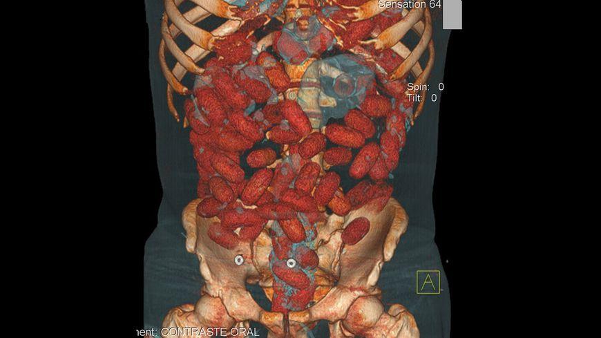 Illustration : sur cette image, on voit des capsules de cocaïne dans le corps d'un passeur.