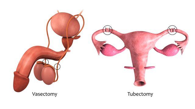 """Schéma d'une vasectomie et d'une ligature des trompes (""""tubectomy"""" en anglais)"""