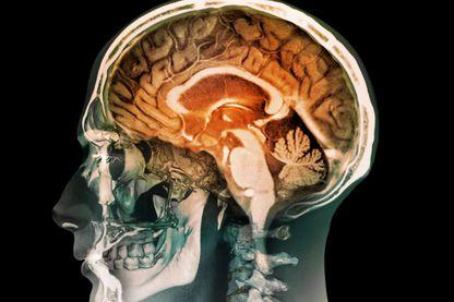 Quand le microbiote a un effet sur le cerveau
