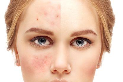 Les maladies de peau qui empoisonnent la vie