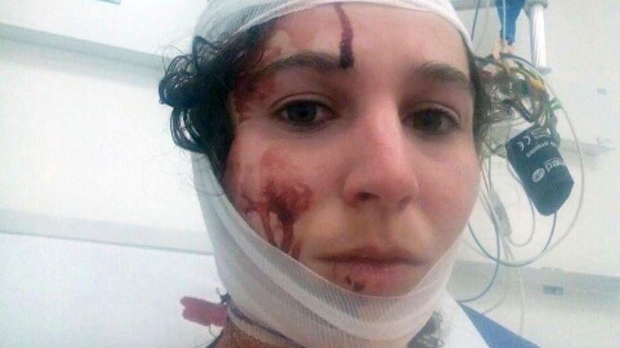 Une des étudiantes blessées