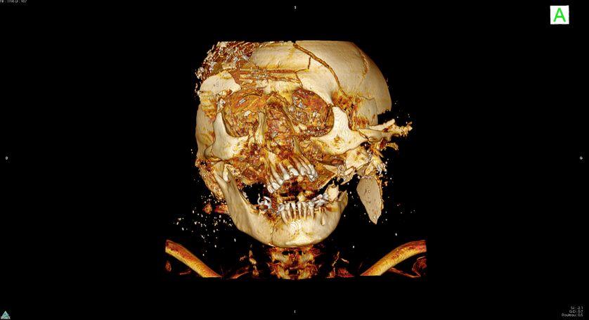 Vue scanner 3D face crâne N°2 : munition de type Projectiles multiples : cartouche de plomb (Fusil de chasse).