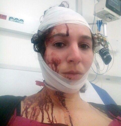 Chloé, l'une des étudiantes blessées