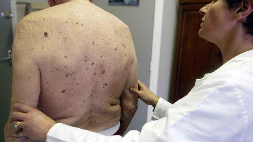 mortalité cancer de la peau