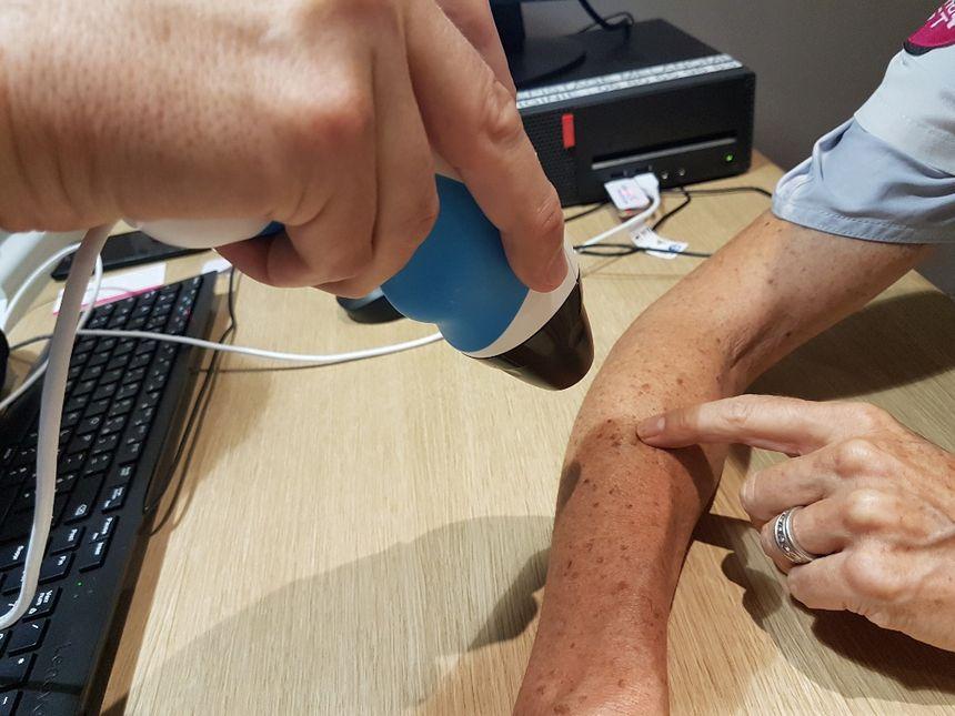 Le patient désigne le grain de beauté qu'il souhaite faire examiner par des dermatologues.