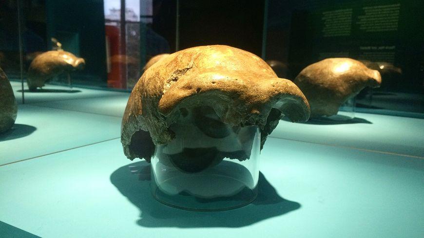 Calotte Crânienne - EXPO Néandertal