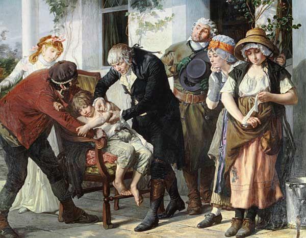 Edward Jenner (1749-1823) pratiquant la première vaccination contre la variole en 1796