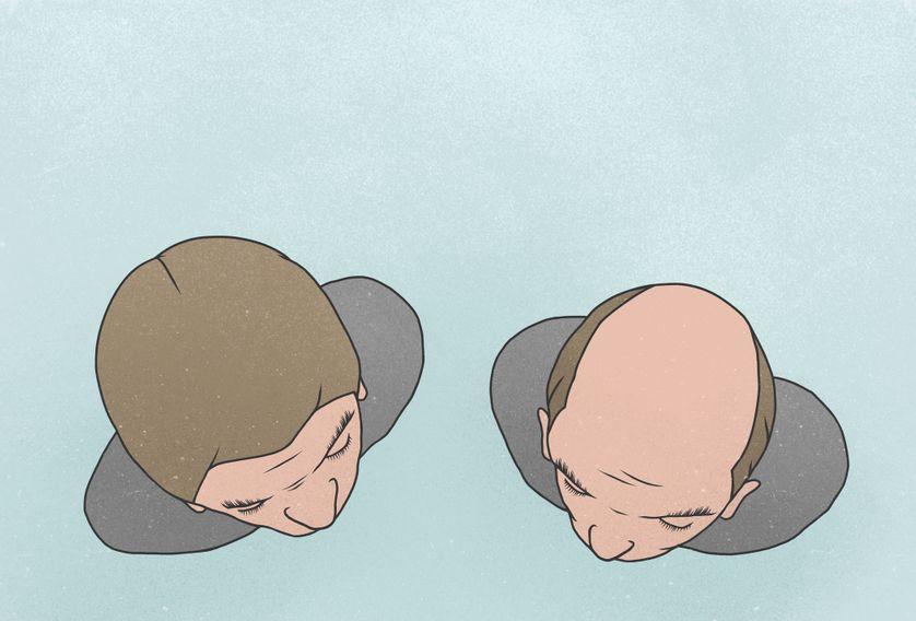 L'alopécie est un terme médical pour désigner une perte de cheveux laissant la peau partiellement ou totalement nue.