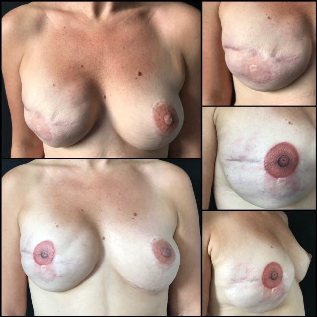 Les seins d'une malade avant et après le tatouage