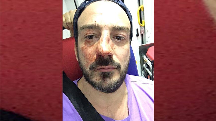 Le président de l'association  Urgence Homophobie victime d'une agression