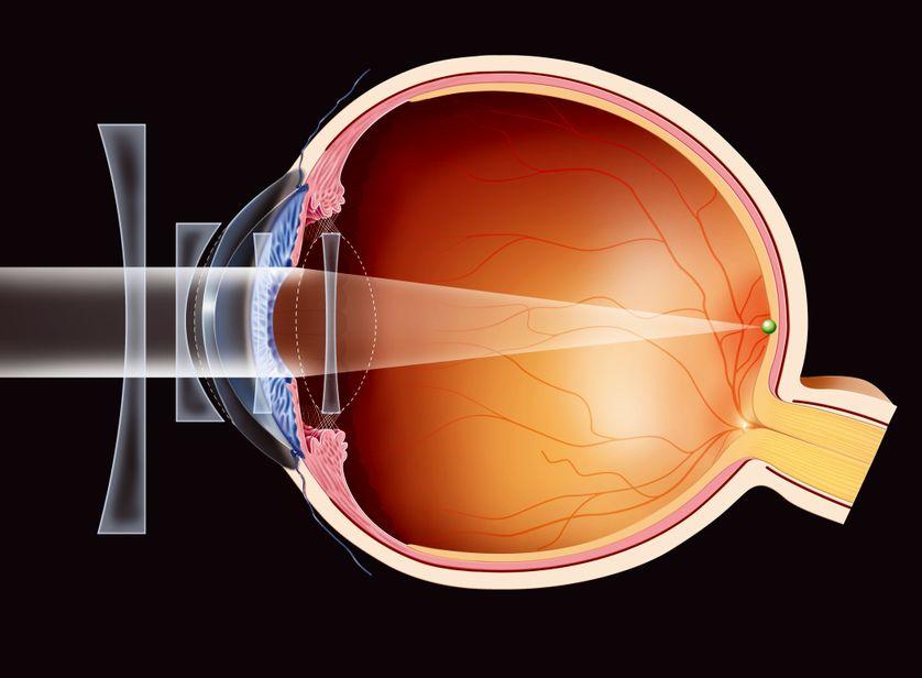 Les travaux du Français Gérard Mourou et de son étudiante canadienne Donna Strickland ont permis d'opérer des millions de personnes souffrant de myopie ou de cataracte. Intervention ici sur la cornée